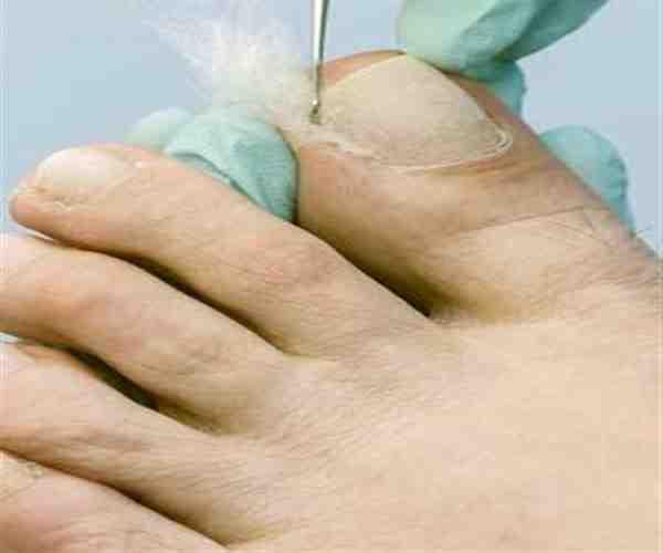 Lana de algodón en uñas encarnadas